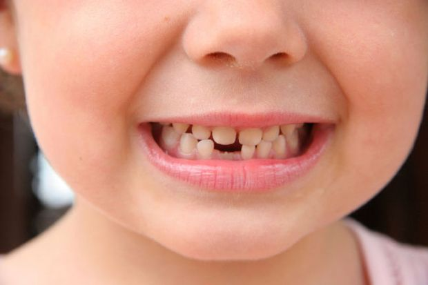 A child with a growing new tooth